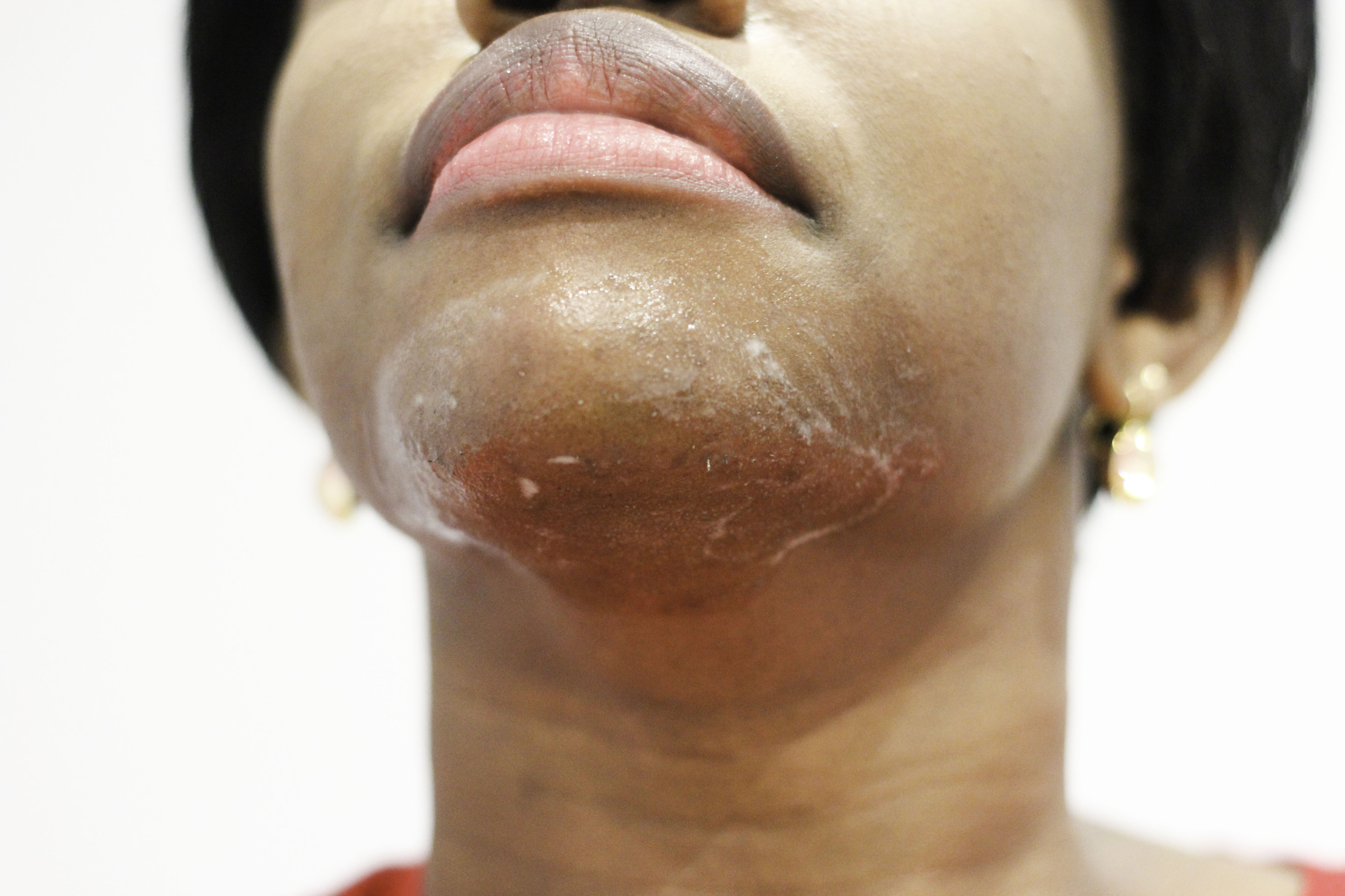 laser hair removal essay The woman, who chose to remain anonymous, explained in an essay for glamour's beauty site lipstickcom that she had never had laser hair removal or even a wax before she purchased a discount laser .